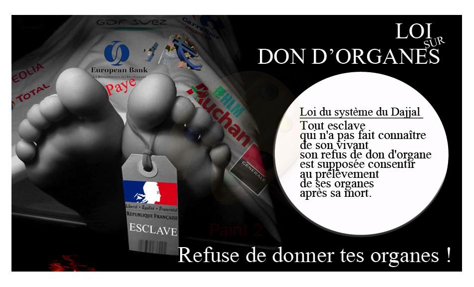 """""""IMPRIMER pdf"""" Refuser des dons d'organe à notre mort"""
